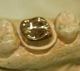 Прогрессивные методы протезирования в современной стоматологии